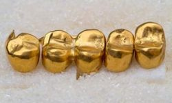 Picture a row of 5 gold filled crowns