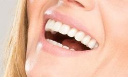 Picture of a smiling woman displaying her all-on-8 dental implant procedure she had in Costa Rica.