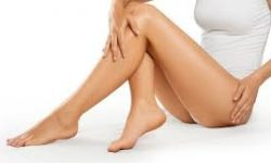 Picture of a patient's legs showing a laser hair removal procedure.