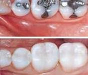 Before and after pictures a row of 4 teeth showing how a holistic fillings removal treatment would look like.