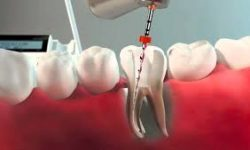 Illustration of a holistic root canal procedure.