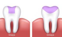 Side by side illustration of a two teeth, one showing a dental inlay procedure and the other showing a dental onlay procedure..