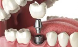 Illustration of a dental implant procedure