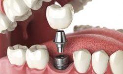 Illustration of a dental implant procedure