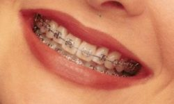 Picture of a smiling woman with dental metal braces, showing her happiness with the metal braces procedure she had in Costa Rica.
