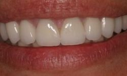 Picture of a smiling woman displaying the top teeth with metal-porcelain crowns she had in Costa Rica.