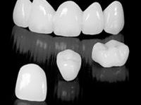 Picture a row of 5 pure porcelain zirconium emax crowns, and 3 individual crowns.