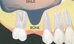 Illustration a sinus lift procedure.