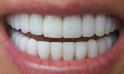Picture of a smiling woman displaying the top teeth with zirconium crowns she had in Costa Rica.