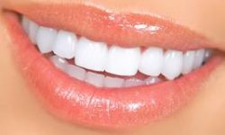 Picture of a smiling woman displaying the top teeth with zirconium veneers she had in Costa Rica.