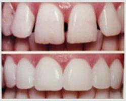 Before and after picture of a dental bonding procedure.